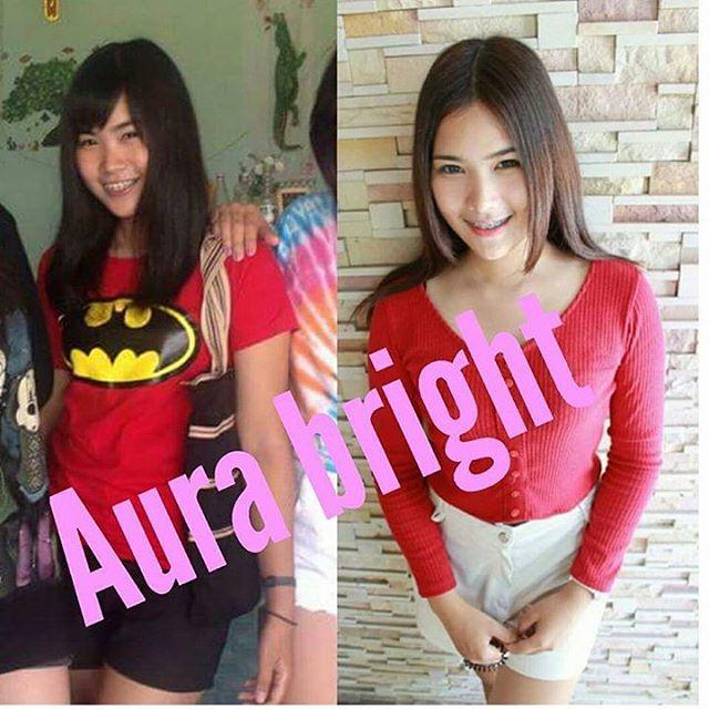 รีวิว ออร่าไบร์ท วิตามินผิวขาว (Aura Bright) 4