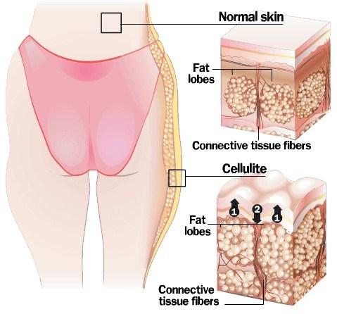เซลล์ลูไลท์ Cellulite